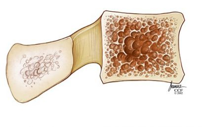 Osteoporosis (Low Bone Mass)