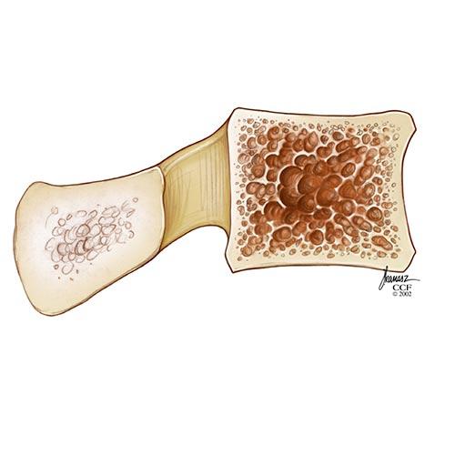 Osteoporosis (Low Bone Mass)