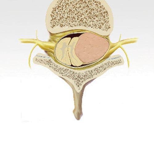 Spinal Tumor