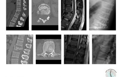 Spine Made Easy: Thoracolumbar Spine Fracture