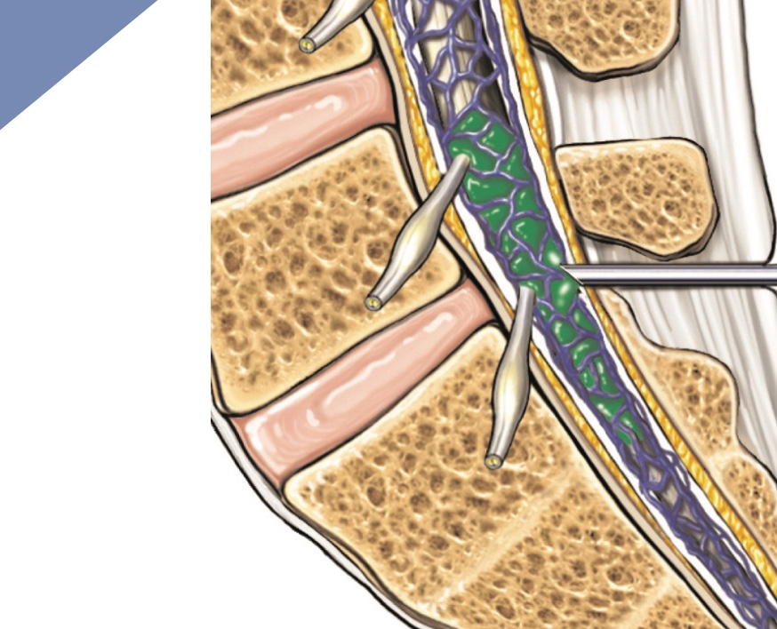 Spinal Injections