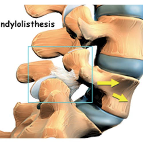 isthmic spondylothesis Isthmic spondylolisthesis, may be caused by repetitive trauma and is more common in athletes exposed to hyperextension motions degenerative spondylolisthesis.