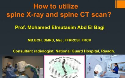 Spine Made Easy: How to Utilize Spine XR & CT Scan